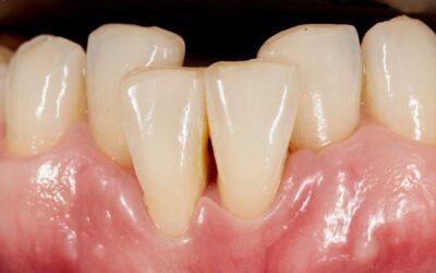 Apiñamiento dental. Causas, consecuencias y cómo corregirlo