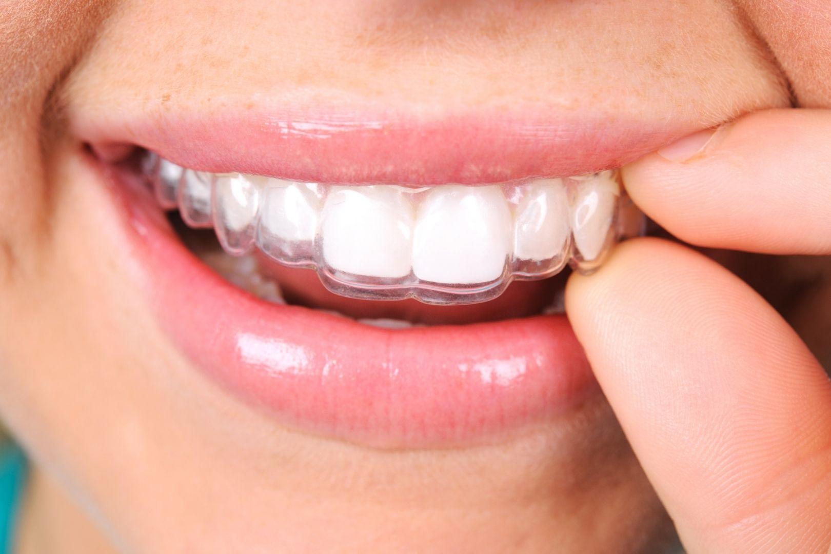 Retención en ortodoncia