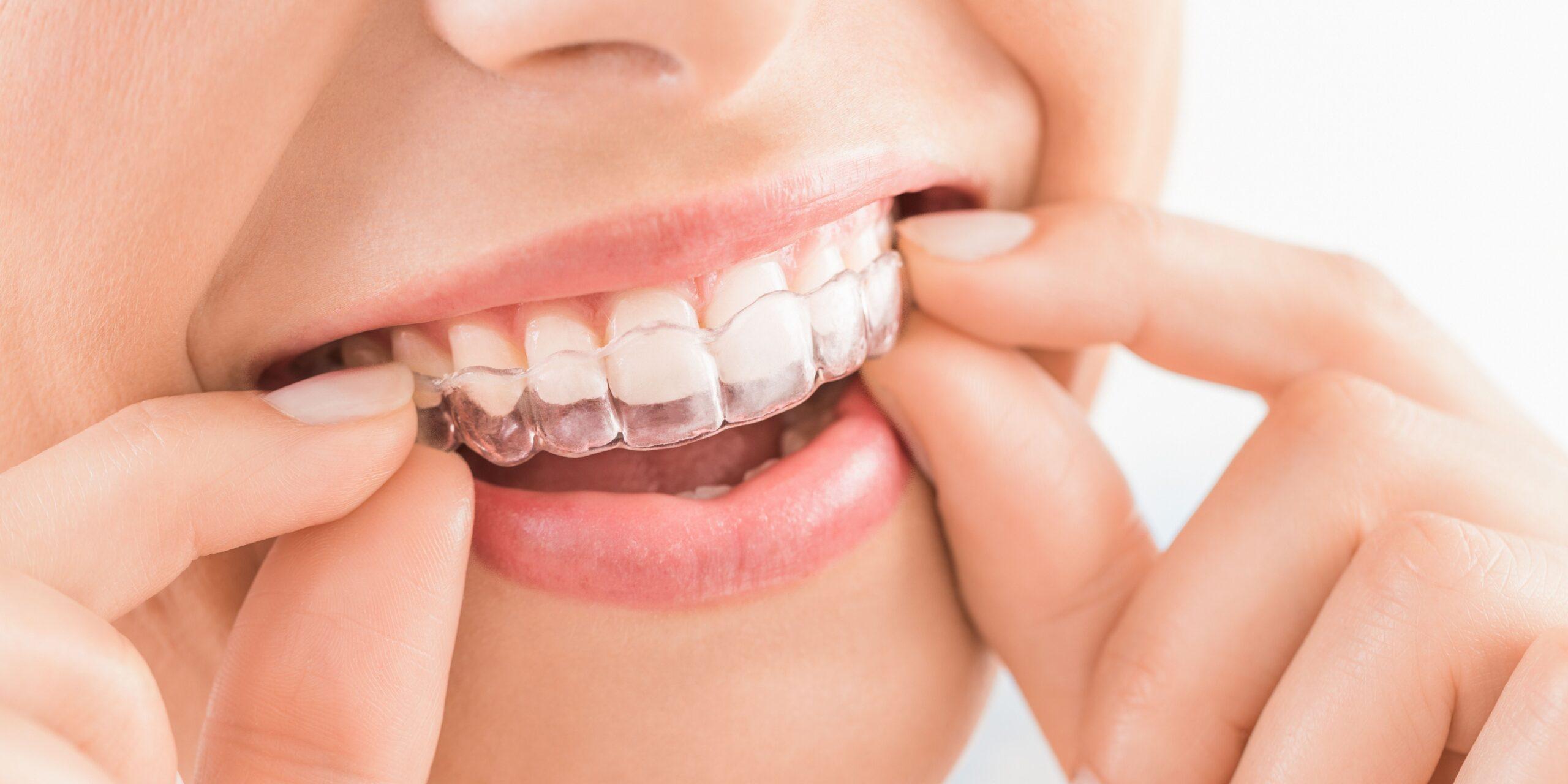 ortodoncia invisible en Vinaròs